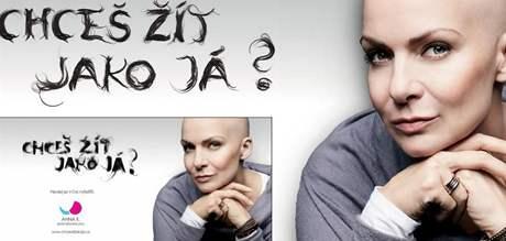 Zpěvačka Anna K. zahájila kampaň proti rakovině prsu