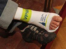 Agituje i sádra na zlomené noze kandidáta Martina Dvořáka.