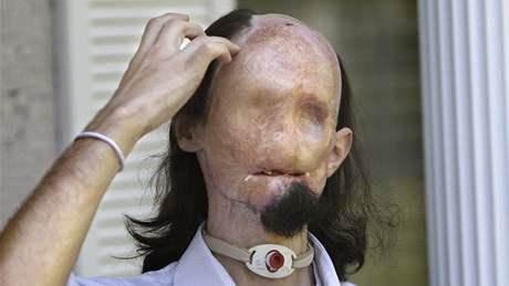 Dallas Wiens čeká na transplantaci obličeje.