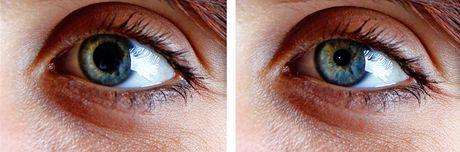 Citlivost oka