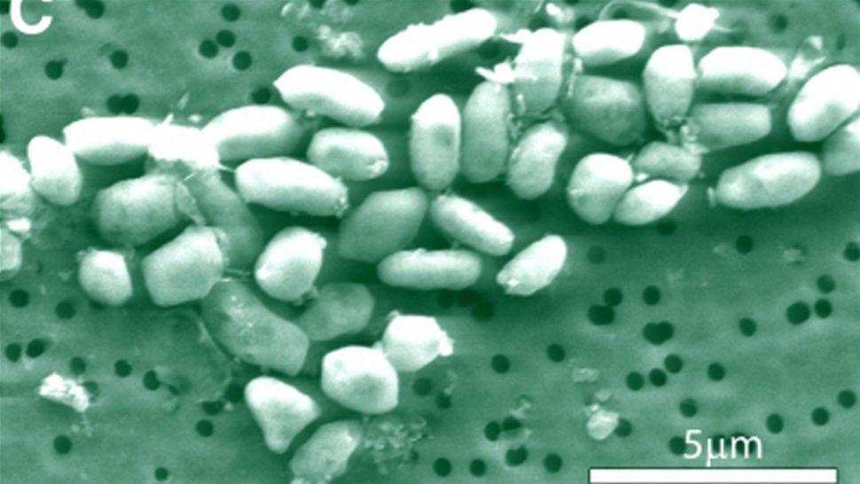 http://i.idnes.cz/10/121/org/NYV378b47_MonoLake_arsenic_bacteria.jpg