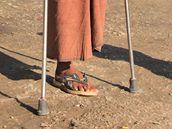 Barmánec bez nohy si přišel na kliniku Mae Tao pro pomoc