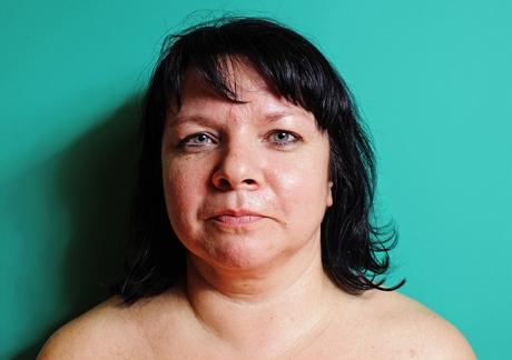 Jaroslava Vokounová, 45 let - soutěžící o proměnu na klinice plastické chirurgie Medicom VIP