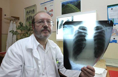 Ředitel plicní léčebny v Humpolci Tomáš Drasnar.