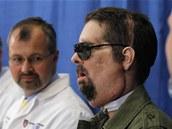 Američan Dallas Wiens s transplantovaným obličejem (v zelené bundě) na tiskové konferenci s chirurgem Bohdanem Pomahačem (druhý zleva)