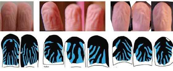 Pohled na prsty zblízka ukazuje, že vrásky vznikající při delším pobytu ve vodě