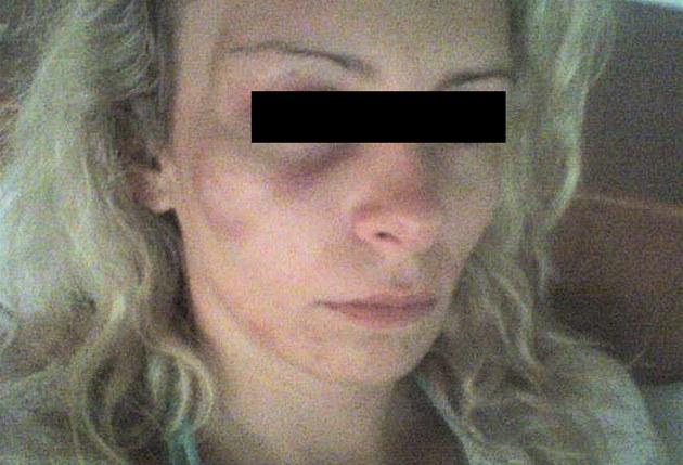 Dvaadvacetiletá Lucie poté, co ji Jaroslav Barták zbil.