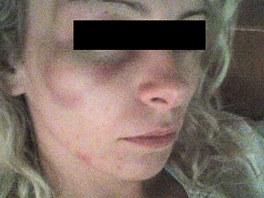 Dvaadvacetilet� Lucie pot�, co ji Jaroslav Bart�k �dajn� zbil.