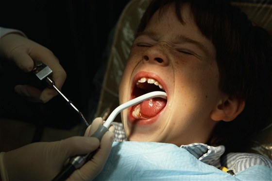 Fluoridace snížila v 50. letech kazivost zubů téměř o polovinu. V dnešní době