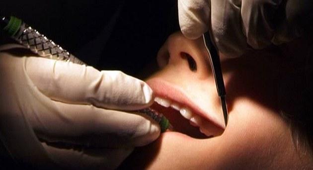 U zuba�e
