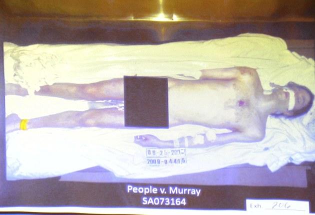 Snímek mrtvého Michaela Jacksona před pitvou