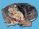 Plíce s rakovinou. Devět z deseti lidí, kteří onemocní rakovinou plic jsou kuřáci.