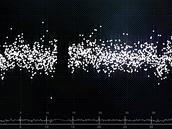 Příklad narušených dat z Planethunters.org