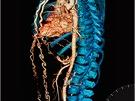 Vítězný snímek kategorie rutinní cévy. Třiačtyřicetiletý nekuřák si stěžoval na