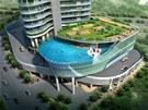 Součástí budovy bude zajímavě koncipovaná krásná zahrada s vířivkou a velkým