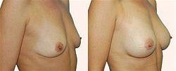 Zvětšení prsou - augmentace3
