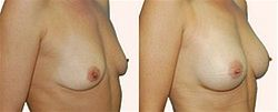 Zv�t�en� prsou - augmentace3
