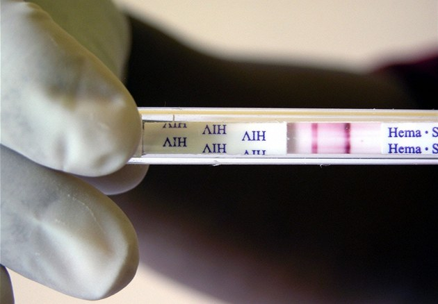 Liberečtí vědci vyvinuli metodu, jak zabít viry a bakterie.