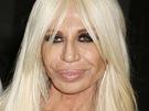M�dn� n�vrh��ka Donatella Versace se od smrti sv�ho bratra v�razn� zm�nila. Plastick� operace, obrovsk� mno�stv� kolagenu ve rtech, spousta botoxu, hektolitry peroxidu a z�vislost na kokainu daly vzniknout mostru.