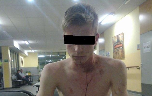 Napadeného mladíka o�et�ili na ambulanci v Masarykov� nemocnici.