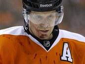Kimmo Timonen z Philadelphie si z utk�n� s Bostonem odnesl krvav� zran�n�.