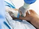 Pod stálou ultrazvukovou kontrolou je do poškozené žíly zavedena tenká kanyla a to zcela bez nutnosti znecitlivění, podobně jako při podávání běžné infuze.