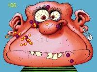 Acne attack - aneb pubertální problémy